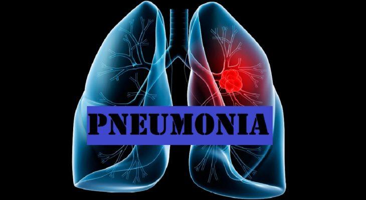 Pneumonia Prevention Tips for Senior Care Providers