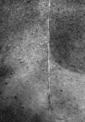image of Scars #22, New York