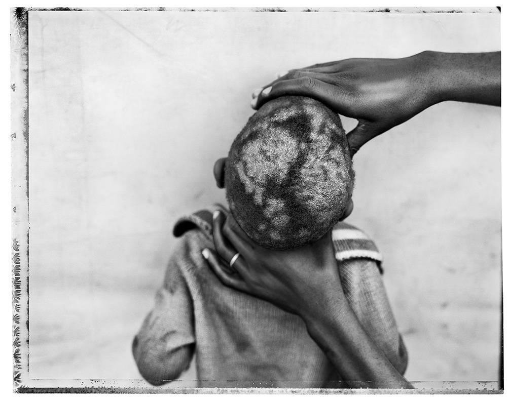 image of 'Skin Disease, Democratic Republic of Congo'