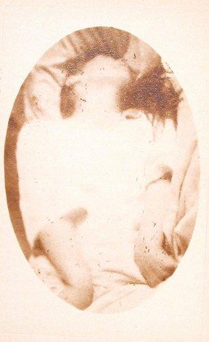 Attaque: période épileptoïde (Epileptic Attack), plate XVII, from L'Iconographie photographique de la Salpêtrière