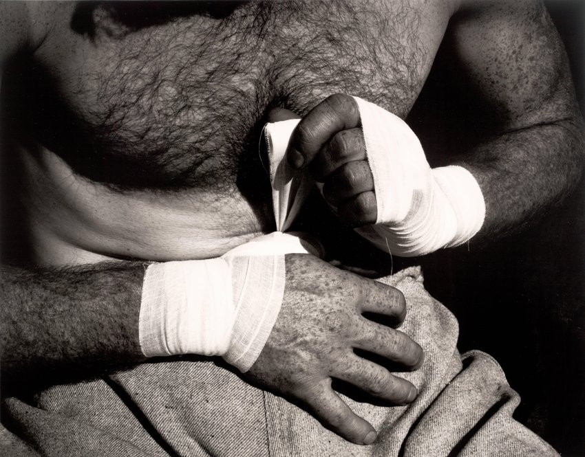 image of 'Boxer's Hands'