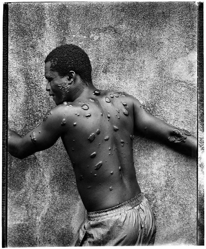 image of 'Keloids, Liberia'