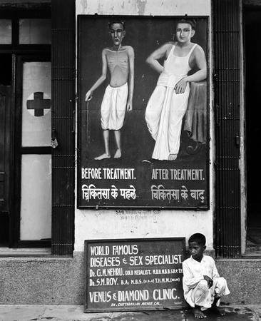 "The Promise. ""Before and After World Famous Treatment."" Calcutta, India"
