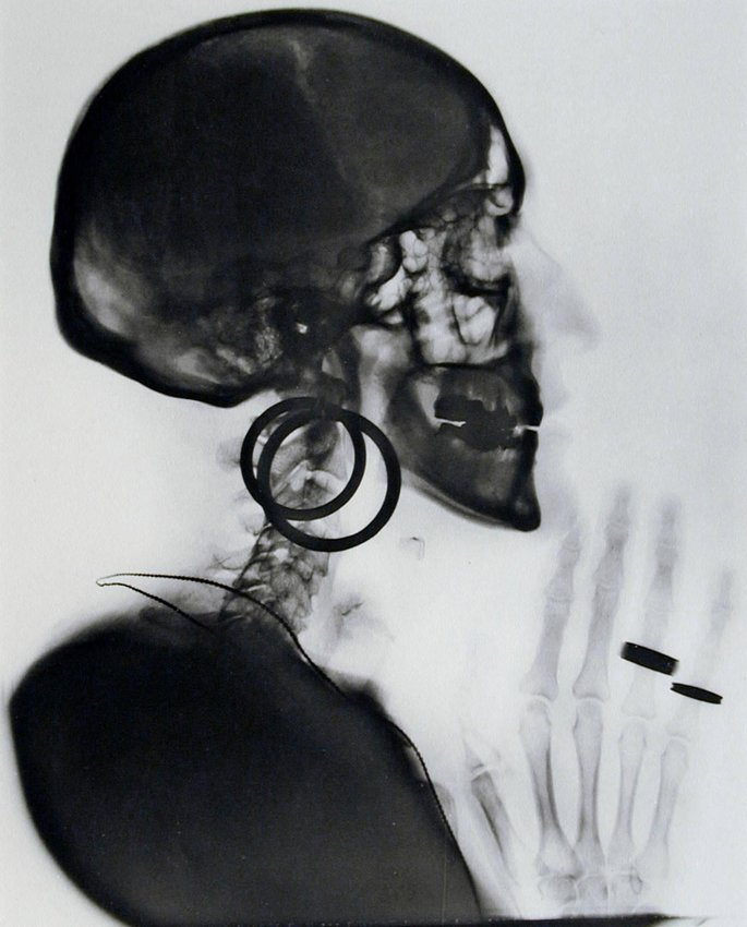 image of 'X-ray of My Skull'