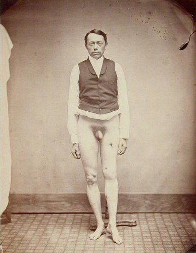 Untitled [Civil War Medical photograph of injured veteran, National Asylum, Augusta, Maine]