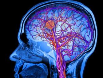 人工智能模型通過最小藥劑量改進癌症治療