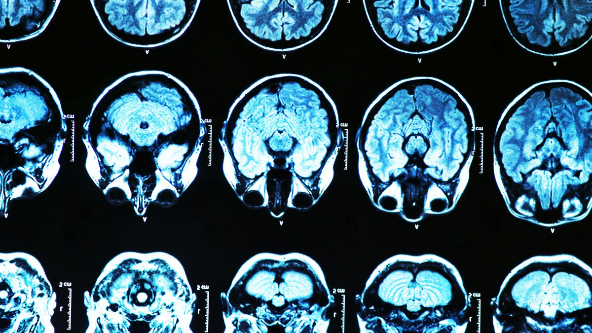 Doctors Plan To Test A Gene Therapy That Could Prevent Alzheimer's Disease