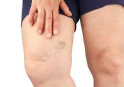 Microagulhamento: conheça o tratamento para cicatrizes e estrias