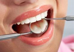Dentistas dão dicas de como cuidar da saúde bucal na folia