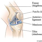 ACL Rupture Prevention Program