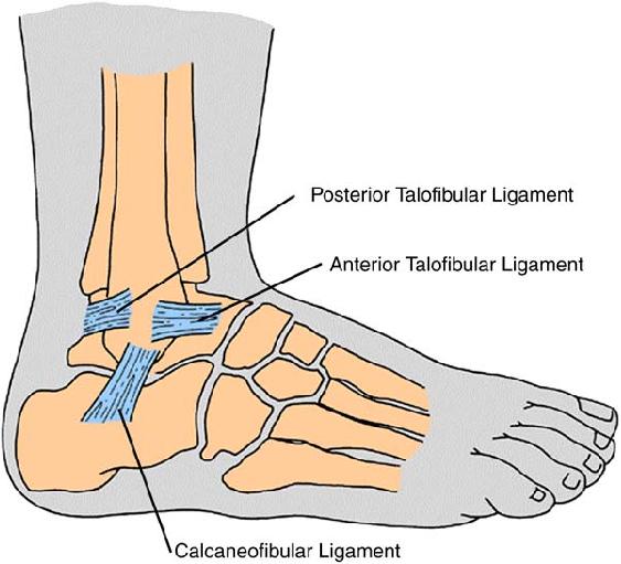 Simple At Home Ankle Sprain Prevention Program