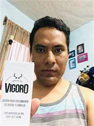 Juan D. verified customer review of Vigoro - Loción de Crecimiento Minoxidil 3%