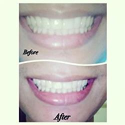 Alejandra verified customer review of Teeth Whitening Charcoal Powder