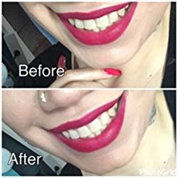 Stasia verified customer review of Oh Bright Teeth Whitening Kit
