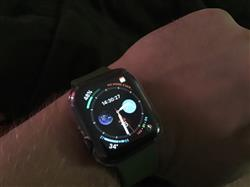 Benjamin R. verified customer review of Watch Bumper Case