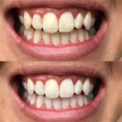 Michelle L. verified customer review of Teeth Whitening Gel (20 Applications)