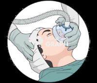 Anaesthesia gaseous