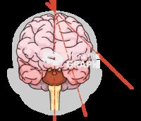 Immature brain cutting plans shape front