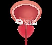 Bladder prostate hyperplasia front cut