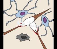 Bone tissue microcrack damage