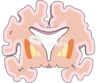 Brain cut alzheimer mild disease