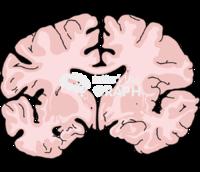 Brain mild alzheimer disease front cut
