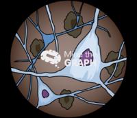 Brain nerve neuron cells damage zoom