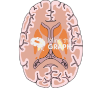 Brain section 2