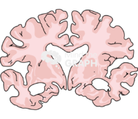 Brain severe alzheimer disease front cut