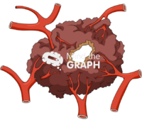 Brain tumor vessel necrosis