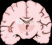 Immature brain hemorragia 1 front cut