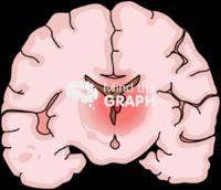 Immature brain hemorrhage 1 front cut