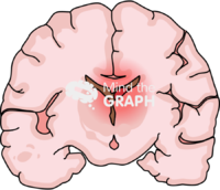 Immature brain hemorrhage 2 front cut