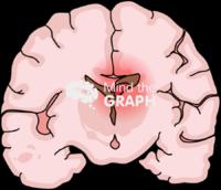 Immature brain hemorrhage 3 front cut