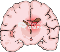 Immature brain hemorrhage 4 front cut