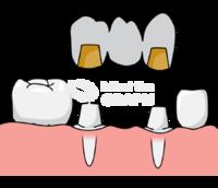 Dental prosthesis lower front 3