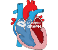Heart ventricle cut