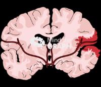 Human brain blood injury front cut 1