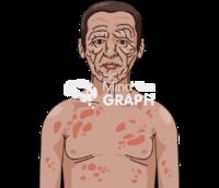 Hansen's disease man body front