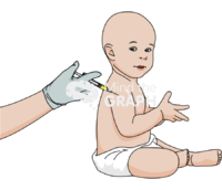 Neonatal bcg vaccination