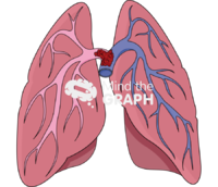 Pulmonary embolism 1