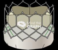 Sapien valve 2