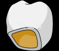 Teeth prosthesis 1