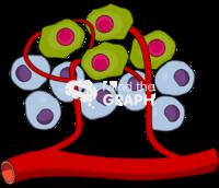 Tumor cancer cell mass 1