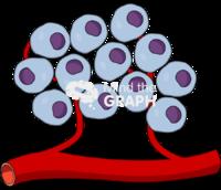 Tumor cancer cell mass 2