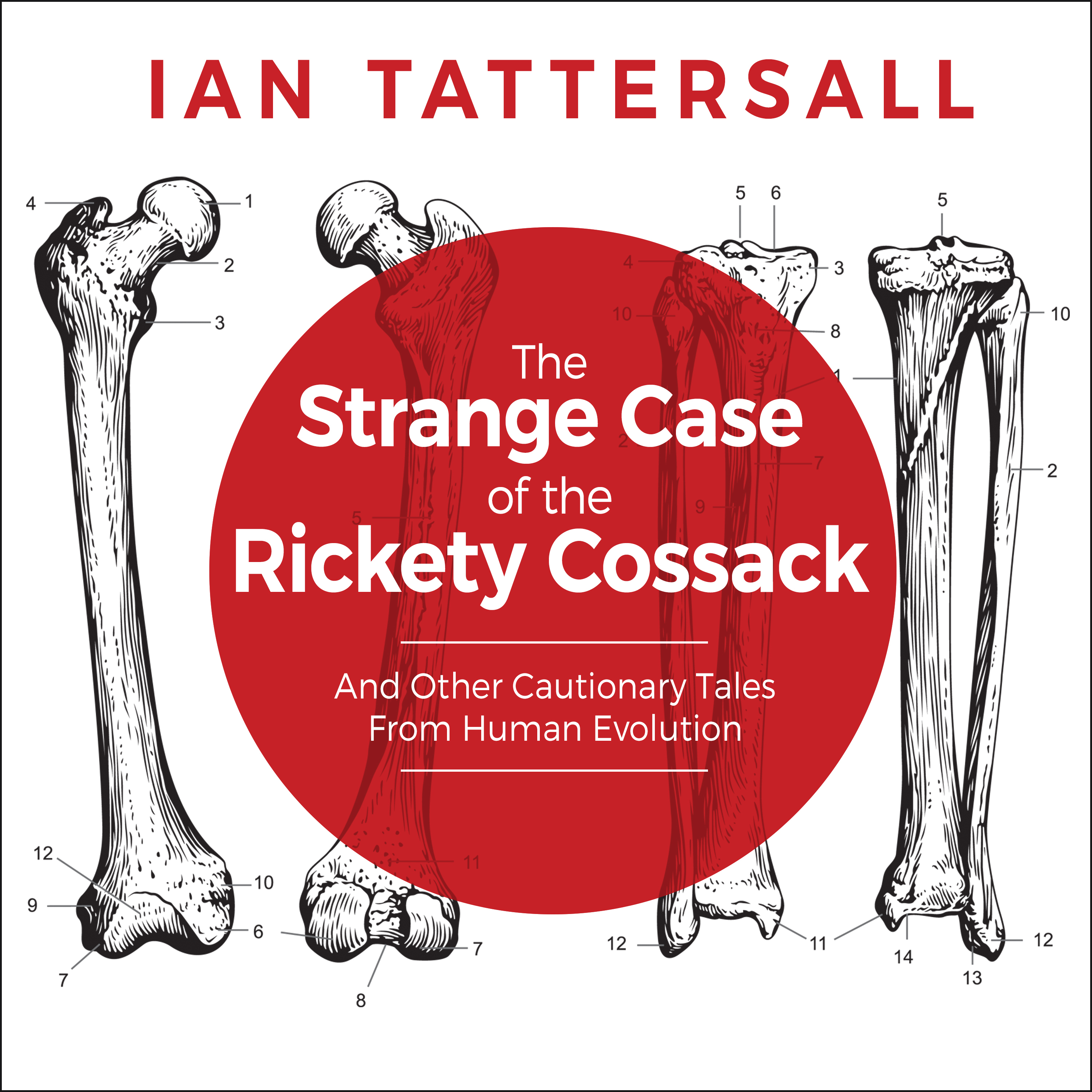 Printable The Strange Case of the Rickety Cossack: And Other Cautionary Tales from Human Evolution Audiobook Cover Art