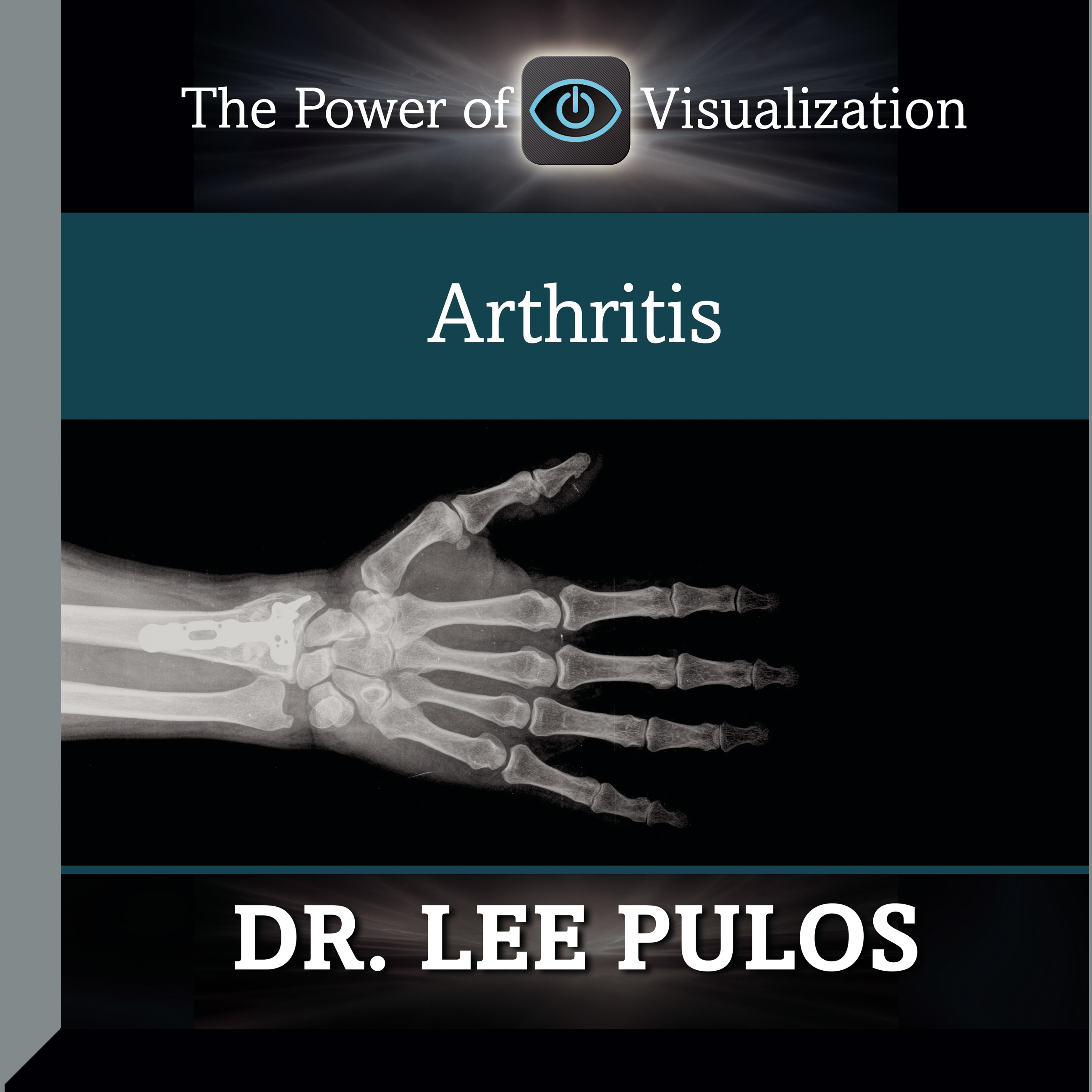 Printable Arthritis Audiobook Cover Art