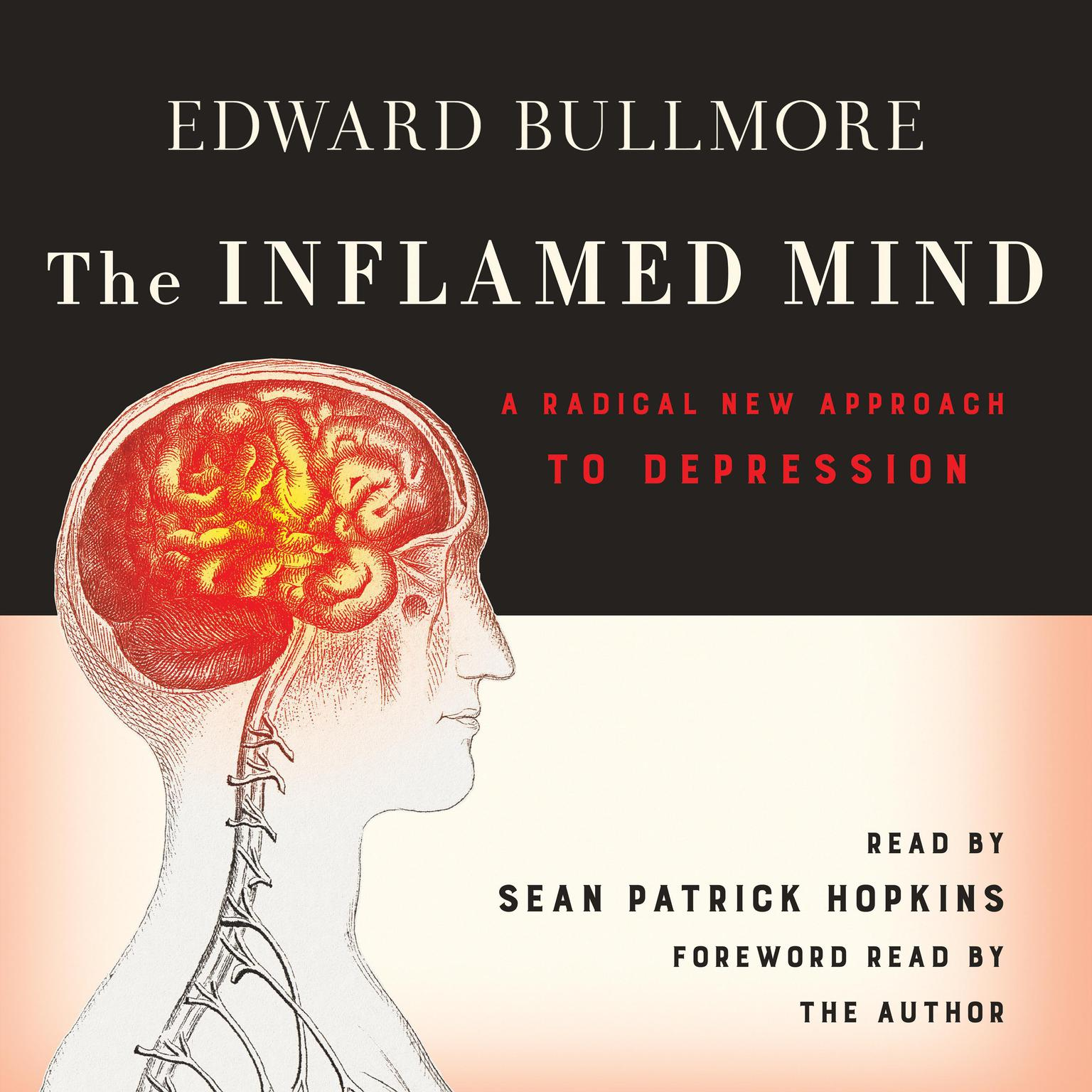 Printable The Inflamed Mind: A Radical New Approach to Depression Audiobook Cover Art