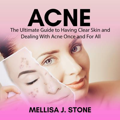 Acne: The Ultimate Guide to Having Clear Skin and Dealing With Acne Once and For All Audiobook, by Mellisa J. Stone