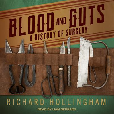 Blood and Guts: A History of Surgery Audiobook, by Richard Hollingham